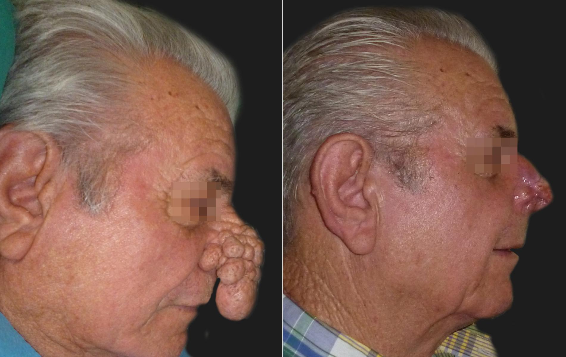 Reconstructive Procedures Skin Cancer Removal
