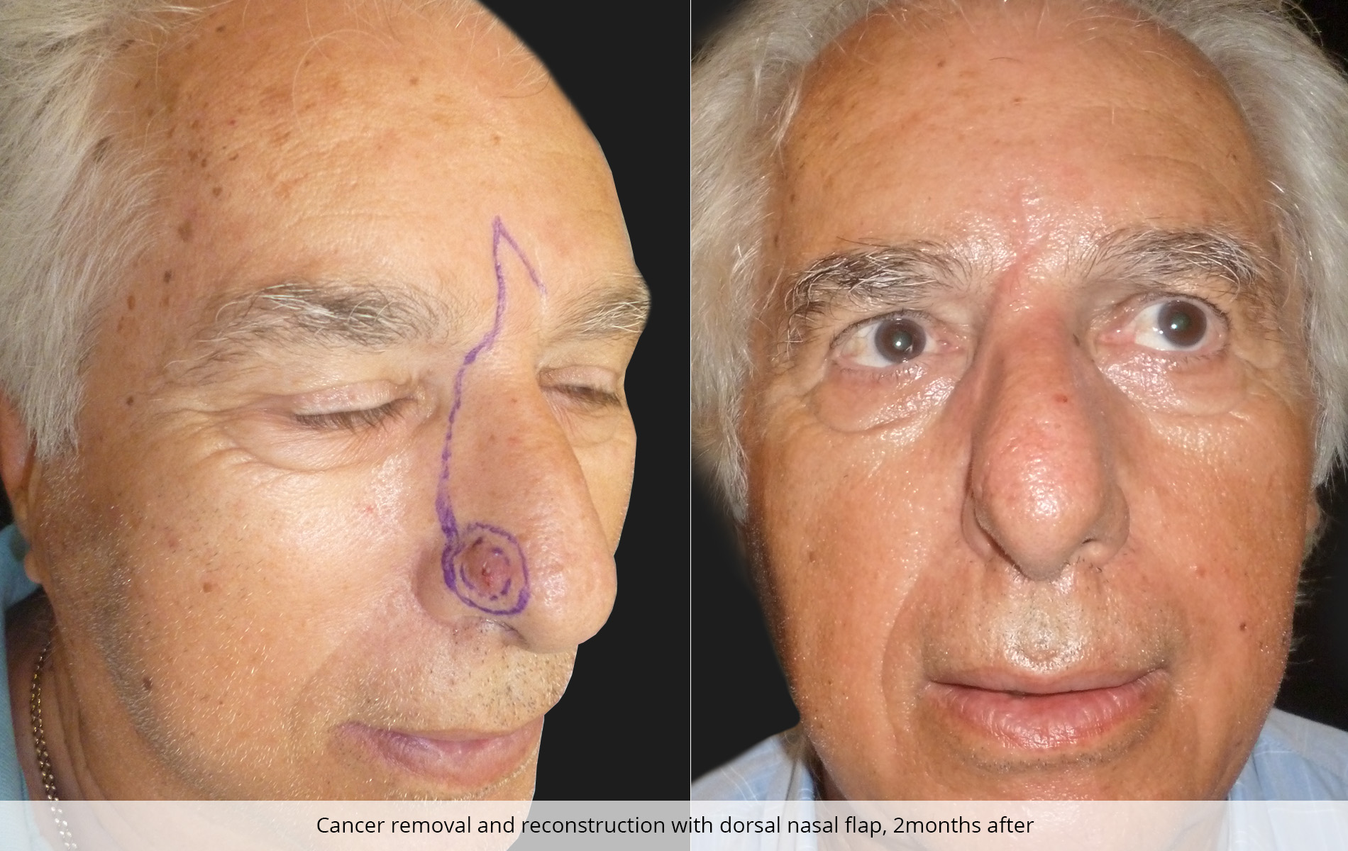 Reconstructive Procedures Skin Cancer Removal